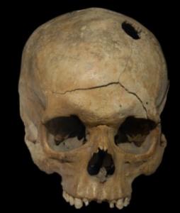 The Human Cranium